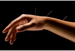 Akupunktūra- vielmaiņas aktivācijai