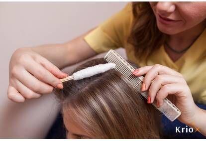 Krioprocedūra stipriem un kupliem matiem Rīgā
